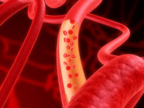 health risks of low cholesterol