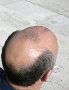 what-causes-baldness